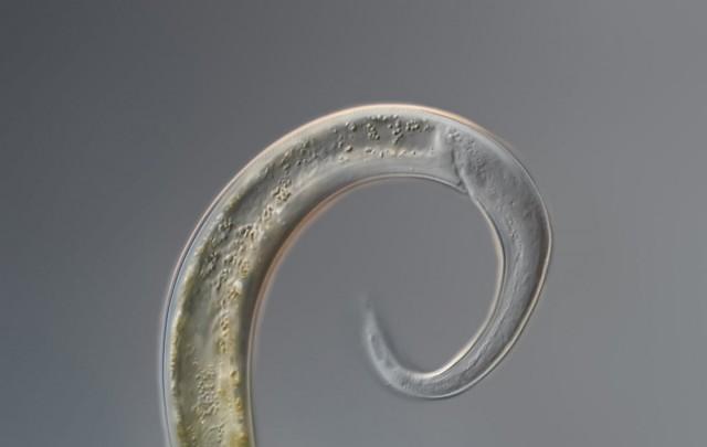 Нематода под микроскопом