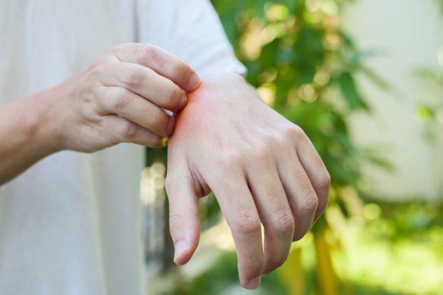 Как бороться с комарами на даче натуральными средствами?